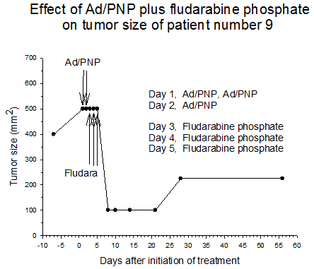 Figure3 Effect of AD/PNP plus fludarabine phosphate on tumor size of patient number 9